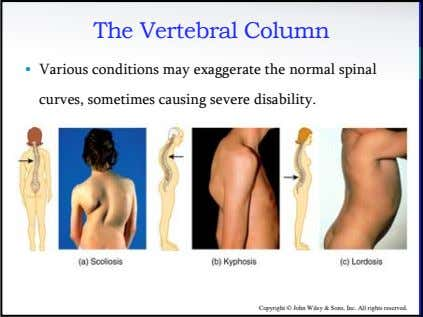 The Vertebral Column • Various conditions may exaggerate the normal spinal curves, sometimes causing severe