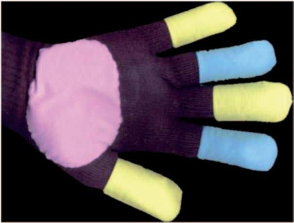 A simple colored glove developed by Lamberti et al. [ 17 ] Fig. 2.12  A colored