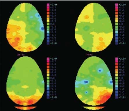 Flohr 15 Figure1. Daniel Miller and John Flohr This image of an EEG Brain scan is