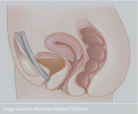 Image courtesy American Medical Systems