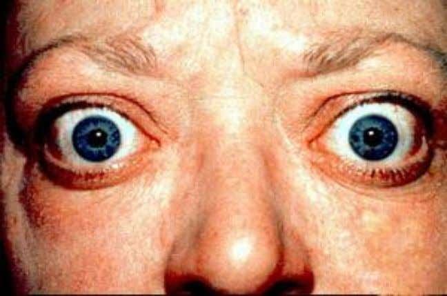 "Classification of Graves' eye disease Mnemonic: ""NO SPECS"": Class 0: No signs or symptoms Class 1:"