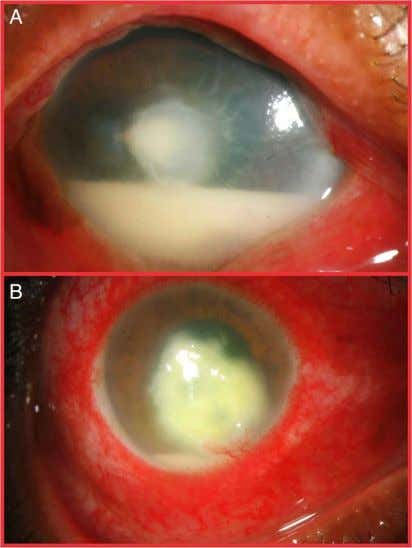 19, 2016 - Published by group.bmj.com Clinical science Figure 1 Slit lamp photograph showing full-thickness