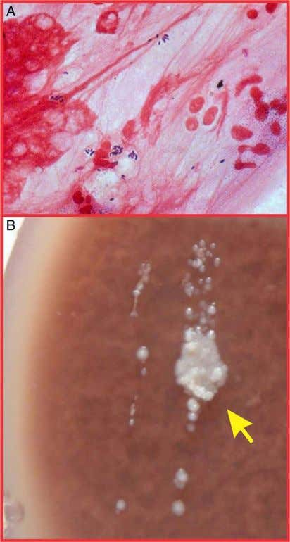 infection. All patients were started with intensive topical Figure 2 (A)Corneal scraping showing gram-positive bacilli