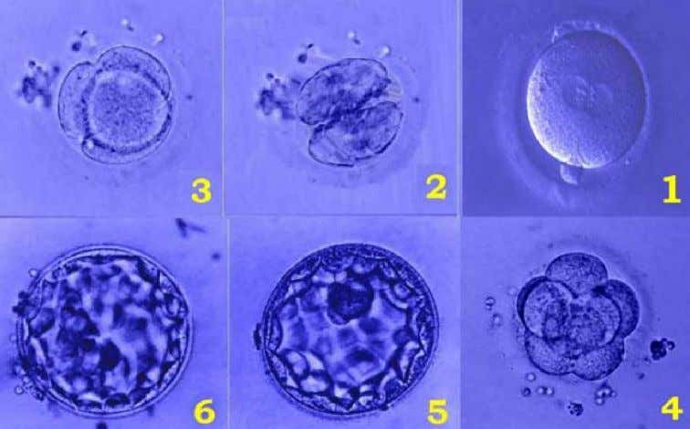 "study confirms that it refers to gametes only [16] . Figure-2: ""Alaqah"": Zygote or fertilized oocyte"
