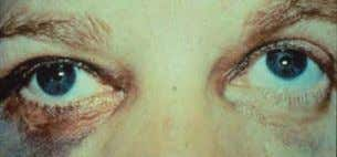 3. Diplopia : Due to muscle paresis, edema of the orbital tissue, entrapment of muscle, fat,