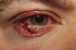 and ocular injury excluded. B. Types of lid injuries 1. Simple partial thickness 2. Lid margins