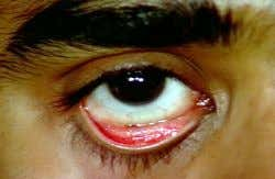 of the sclera. Contains many free nerve endings and is very sensitive. a. Bulbar: Outer surface
