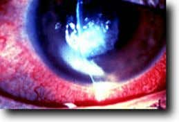 or contact lens use or abuse. They present with pain, photophobia, decreased visual acuity, a white
