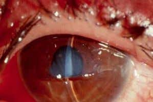 retraction should be avoided. XII. Corneal laceration A. Definition: Full-thickness injury to the cornea B.