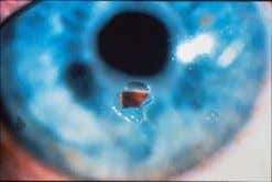 from vomiting XIII. Corneal/conjunctival foreign bodies A. Etiology : Fragments fly into the eye from working