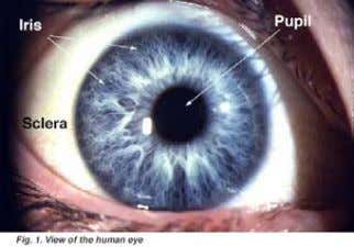 dilation in response to a reduction in light levels d. Ciliary body : Along its outer