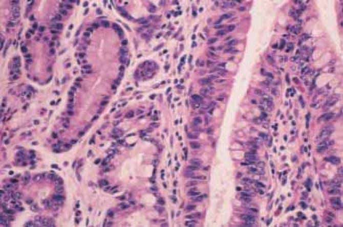 A B Fig. 1.23 Barrett oesophagus. A Haphazardly arranged glands (right) adjacent to hyperplastic squamous epithelium