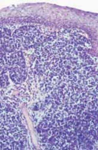 gus include expansion of the Ki-67 prolif- eration compartment correlating with the degree of intraepithelial neoplasia