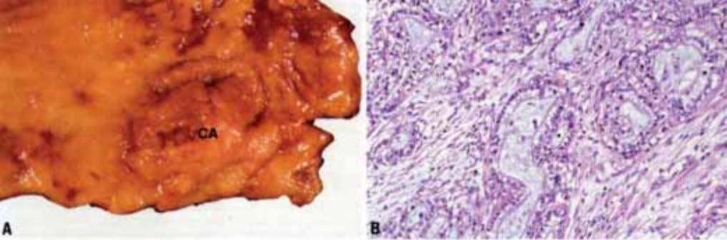 Fig. 2.05 Adenocarcinoma of the proximal stomach ('pylorocardiac type'). A Macroscopic appearance resembles other adenocarcinmomas. B