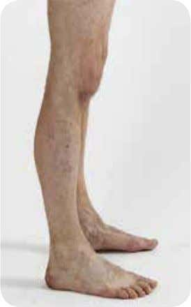 are increased on the convex side of the bone. a figure 1.1 b Tibia in this