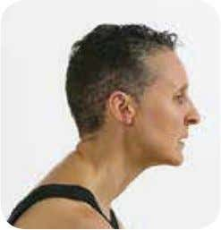 nerves, resulting in neck, shoulder, back and arm pain. figure 1.2 Example of a forward head