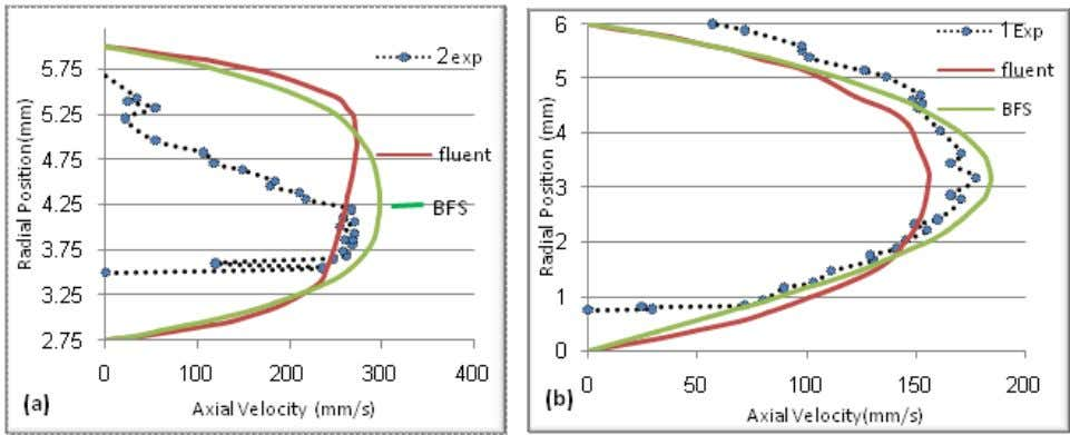 Blood Flow in Large Arteries by a Finite Element Method 179 (a) Velocity Profile Upstream the