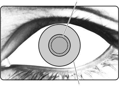 main body apart from the patient's eye. R bouton Mire ring Target ring Focusing point About
