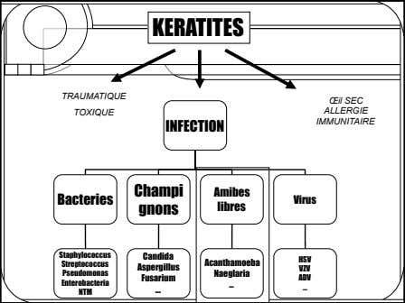 KERATITES TRAUMATIQUE Œil SEC TOXIQUE ALLERGIE IMMUNITAIRE INFECTION Champi Amibes Bacteries Virus gnons