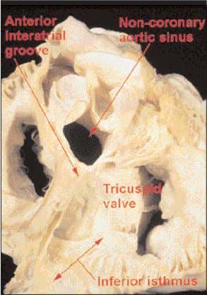 is, in reality, the deep superior interatrial groove. Figure 21 Removing the non-coronary sinus reveals the