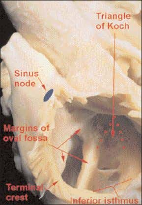 terminal groove and the commonest site for the sinus node. Figure 23 The right atrium, in