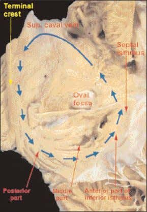 the slow pathway into the atrioventricular node. Figure 28 The atrial walls have been opened out