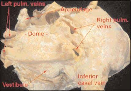 to the anterior parts of the mitral vestibule (Figure 32). Figure 30 The posterior wall of