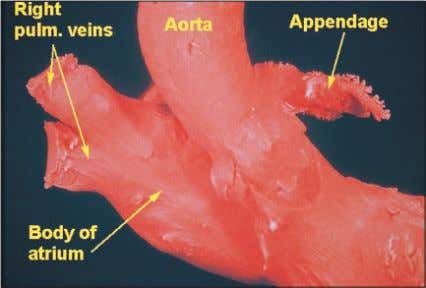view of the right atrium, showing its component parts. Figure 8 A close-up of the right