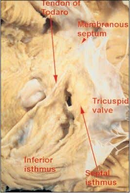 with the heart viewed in attitudinally correct position. Figure 15 The relationship of the cavo-tricuspid isthmus,