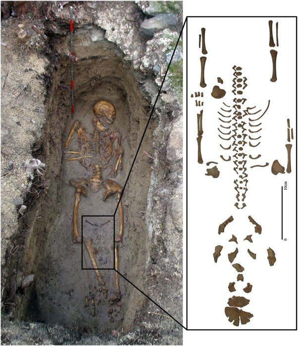 The Non-Adult Cohort from Le Morne Cemetery, Mauritius Figure 3. Inset: recovered foetal bones from Structure