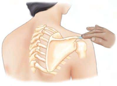 Elsevier, Inc. Upper Extremity Section 1: Shoulder Girdle A Posterolateral view B Posterolateral view Acromion process