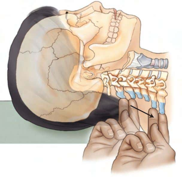 of Elsevier, Inc. Axial Body Section 4: Posterior Neck Lateral view Spinous processes of C2 through