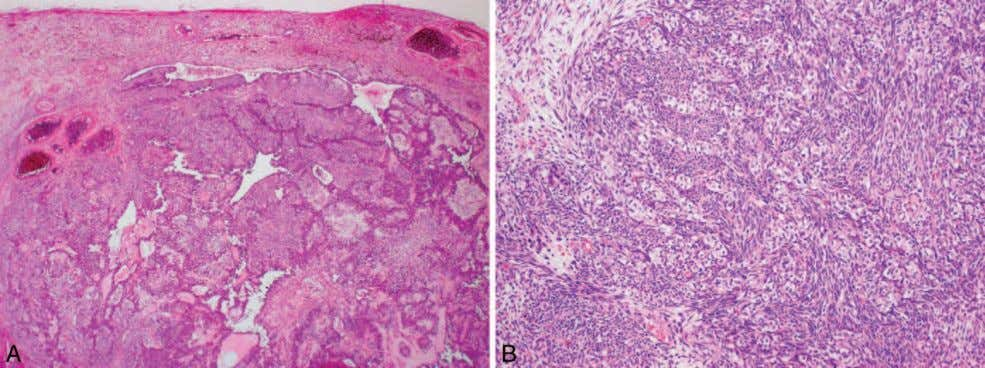 Figure 6. Sarcomas. A and B, Synovial sarcoma. Although rare, synovial sarcoma is one of
