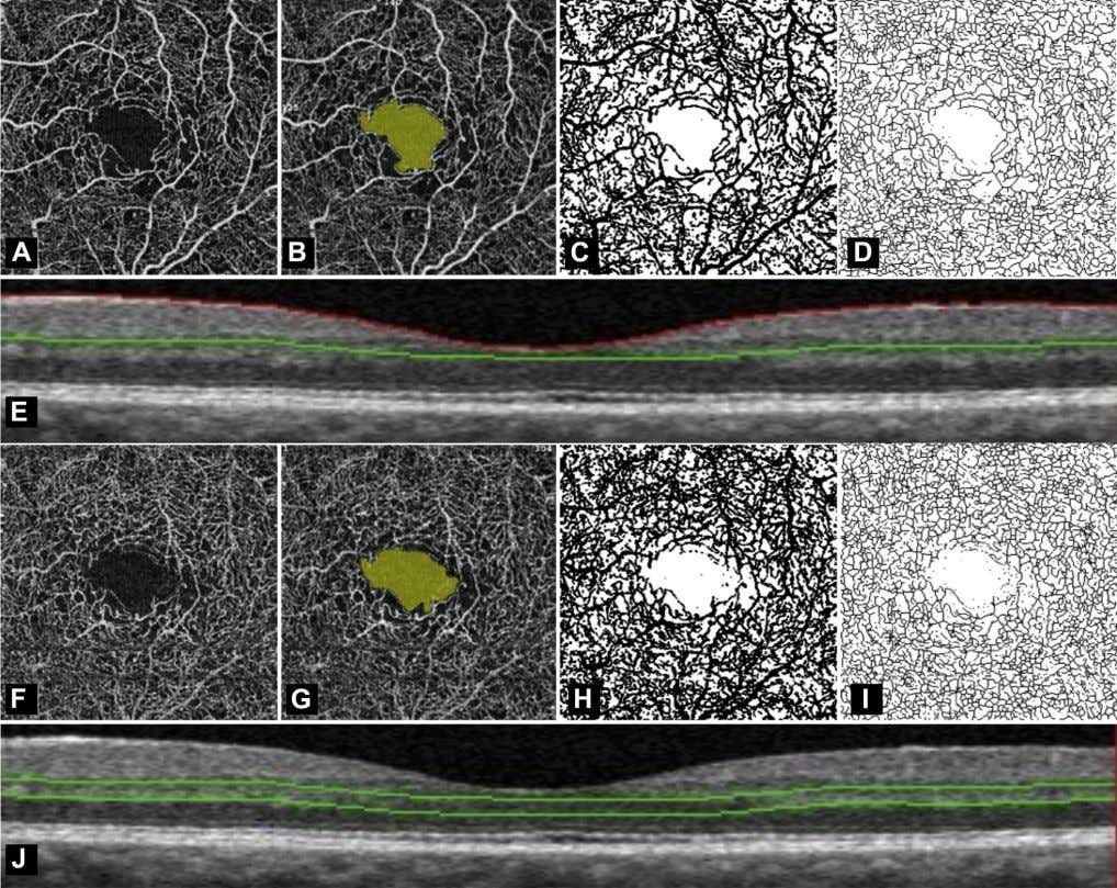 Samara et al Quanti fi cation of DMI with OCTA Figure 1. Foveal avascular zone (FAZ)