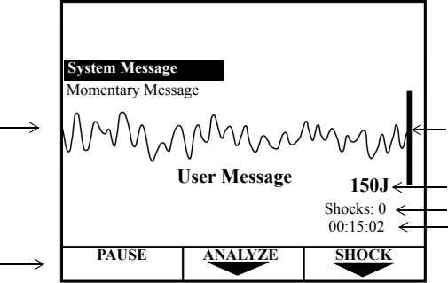 System Message Momentary Message User Message 150J Shocks: 0 00:15:02 PAUSE ANALYZE SHOCK