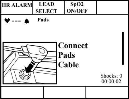 HR ALARM LEAD SpO2 SELECT ON/OFF --- Pads Connect Pads Cable Shocks: 0 00:00:02