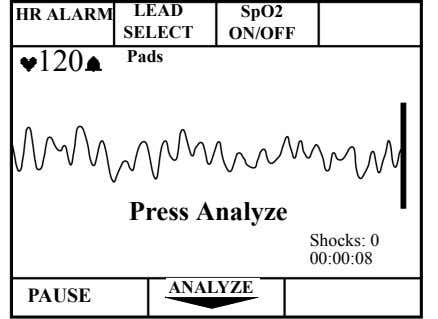 LEAD HR ALARM SpO2 SELECT ON/OFF 120 Pads Press Analyze Shocks: 0 00:00:08 ANALYZE PAUSE