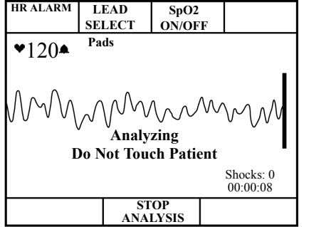 HR ALARM LEAD SpO2 SELECT ON/OFF Pads 120 Analyzing Do Not Touch Patient Shocks: 0