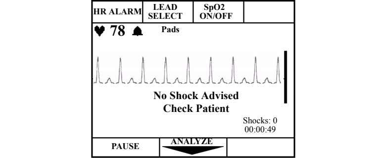 LEAD SpO2 HR ALARM SELECT ON/OFF 78 Pads No Shock Advised Check Patient Shocks: 0