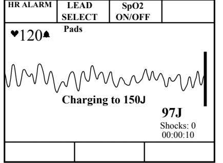 HR ALARM LEAD SpO2 SELECT ON/OFF Pads 120 Charging to 150J 97J Shocks: 0 00:00:10