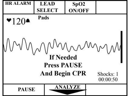 HR ALARM LEAD SpO2 SELECT ON/OFF Pads 120 If Needed Press PAUSE And Begin CPR