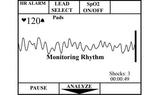 HR ALARM LEAD SpO2 SELECT ON/OFF Pads 120 Monitoring Rhythm Shocks: 3 00:00:49 ANALYZE PAUSE