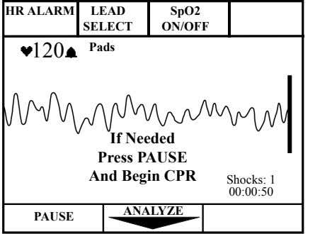 HR ALARM LEAD SpO2 SELECT ON/OFF 120 Pads If Needed Press PAUSE And Begin CPR