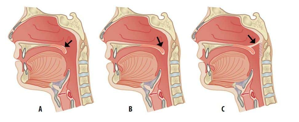 the anatomy of the nasopharynx and reduces congestion. Figure 3. A) After the palate has been