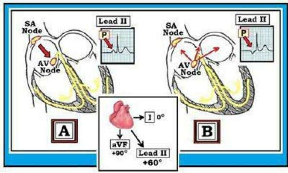 is dextrocardia; or ii) if there is lead misplacement. Figure 02.3-1: IF the rhythm is sinus