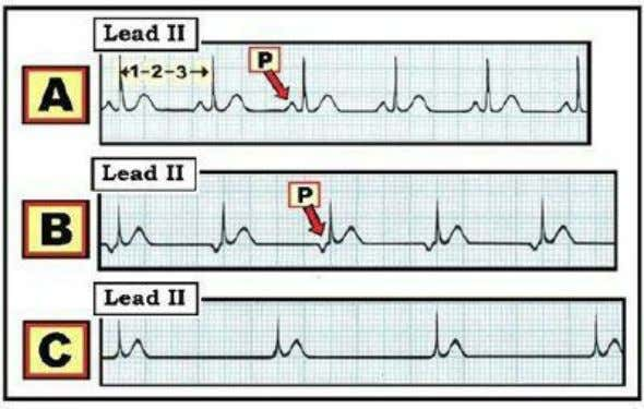 ( Assume no dextrocardia and no lead misplacement ). Figure 02.4-1: How to tell IF the