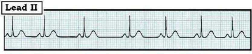 and/or in the PR interval. The P waves will be different! Figure 02.7-1: Sinus Arrhythmia. Despite