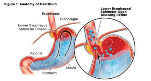 of heartburn. These confounding diagnoses include pill esophagitis (commonly from ferrous sulfate tablets,