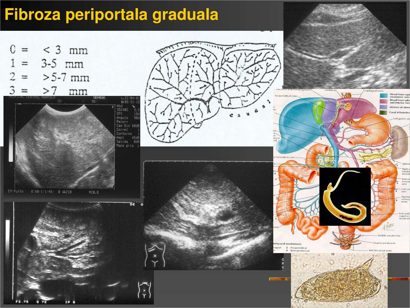 Fibroza periportala graduala normal