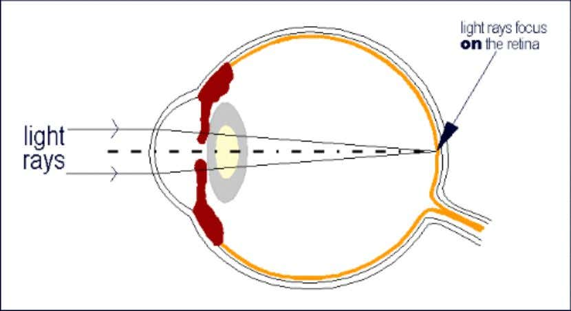 • Emmetropia – Is the condition when the parallel rays focused exactly on the retina of